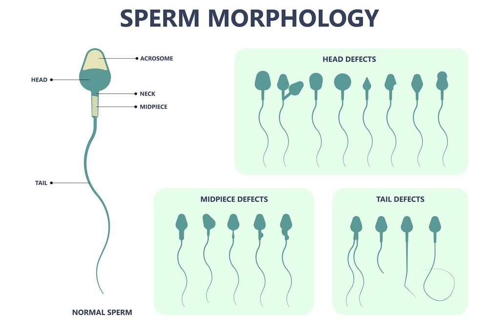 Chart depicting the various types of sperm morphology